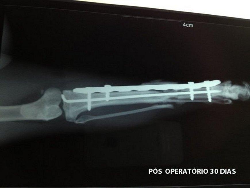 Cirurgia Mipo